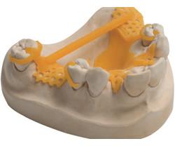 VarseoWax CAD/Cast